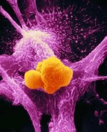 GcMAF Immunotherapy