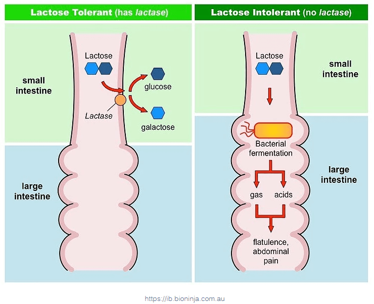 Clinical Perspectives of Food Intolerances – Lactose, Fructose and Histamine