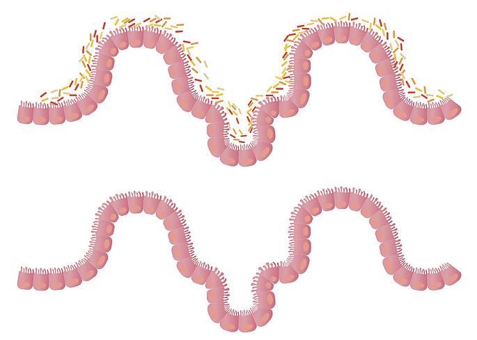 The Gastrointestinal Microbiota